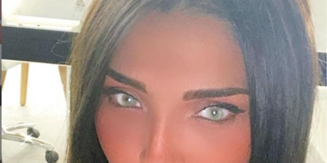 Αγγελική Ηλιάδη: Κύμα αρνητικών σχολίων μετά τις πλαστικές επεμβάσεις της