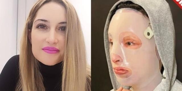 Επίθεση με βιτριόλι: «Το ένα αυτί της Ιωάννας έχει εξαφανιστεί»