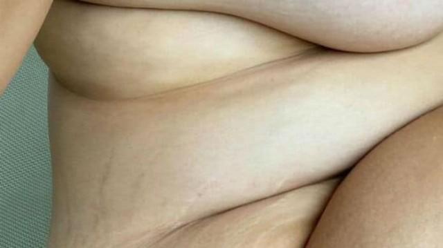 Έτσι είναι το σώμα γνωστού μοντέλου μετά την γέννηση του πρώτου της παιδιού!
