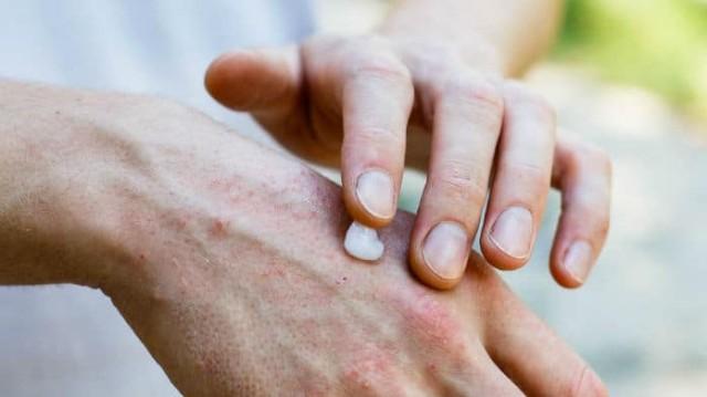 Ψωρίαση: Να πως θα προστατευτείτε από την επικίνδυνη ασθένεια του φθινοπώρου!