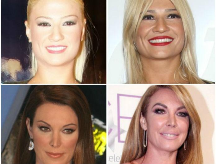 Πριν & μετά: Oι celebrities με τα πολύ βγαλμένα φρύδια και η... μεταμόρφωσή τους! (Photos)