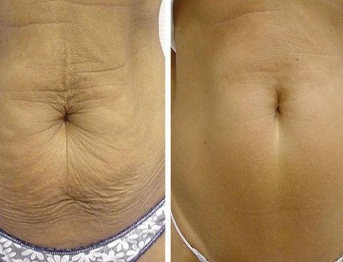 Πως να συσφίξετε το δέρμα σας με φυσικό τρόπο!