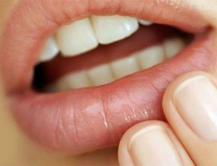 Προσοχή στις λευκές κηλίδες στα χείλη! Ποιες σοβαρές ασθένειες δείχνουν και δεν το γνώριζες;