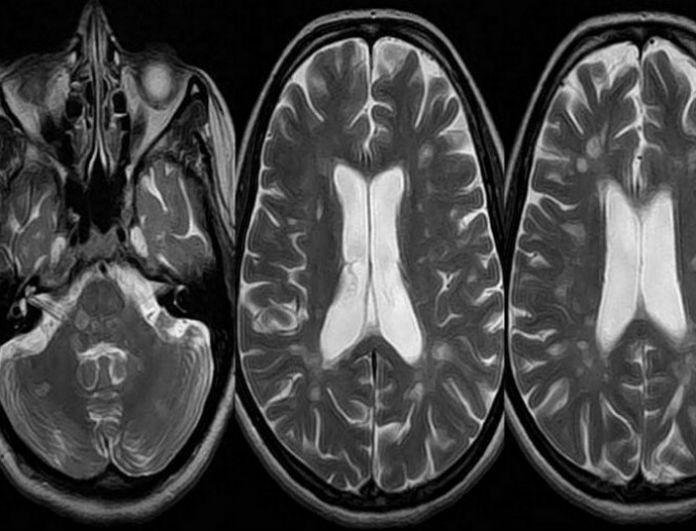 Σκλήρυνση κατά πλάκας: Ποια τα πρώιμα συμπτώματα που δεν πρέπει να αγνοήσετε