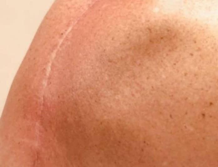 Συγκλονίζει πρωταγωνίστρια ριάλιτι: Η ουλή στη σπονδυλική στήλη μετά το χειρουργείο!