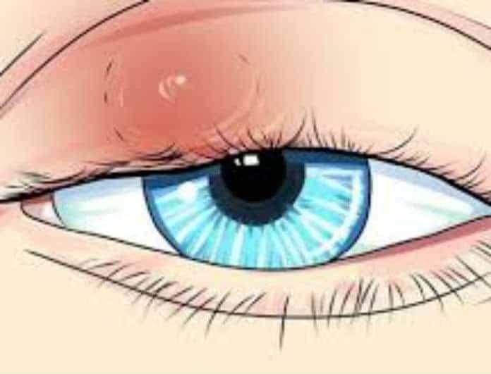 Καρκίνος στο μάτι: Αυτά είναι τα συμπτώματα! Μεγάλη προσοχή!