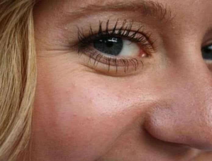 Ρυτίδες κάτω από τα μάτια: Οι 4 μοναδικοί τρόποι για να τις σβήσεις μια και καλή!