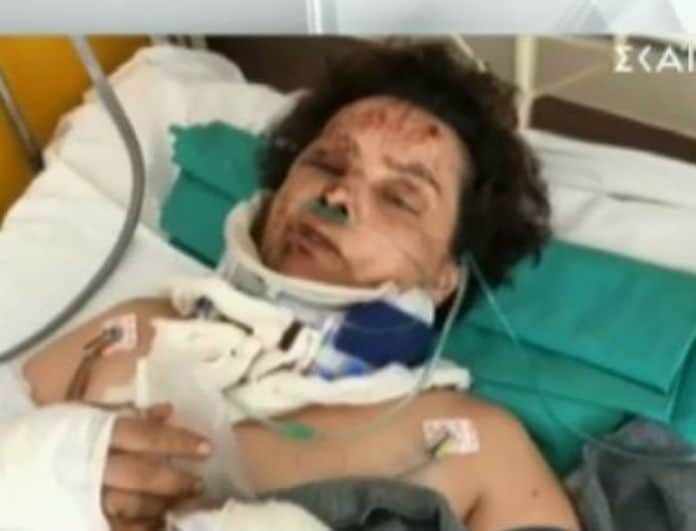 Τροχαίο Πατησίων: Συγκλονίζει η γυναίκα που τραυματίστηκε! Εικόνες σοκ! (Βίντεο)