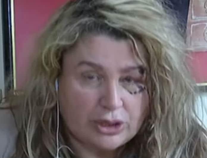 Συγκλόνισε η Μπίλι Τζόε για τον ξυλοδαρμό της! «Με χτύπαγε με βαλίτσα! Έβλεπα το αίμα...»!