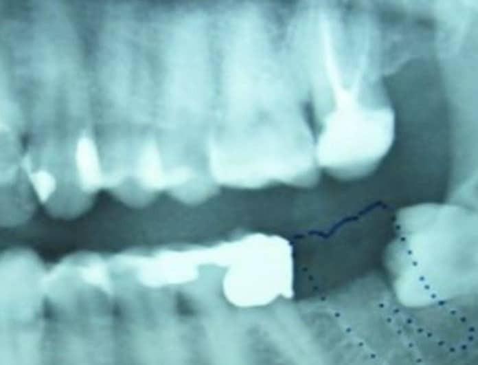 Απίστευτο: Το δόντι που του έλειπε βγήκε στους... όρχεις του!