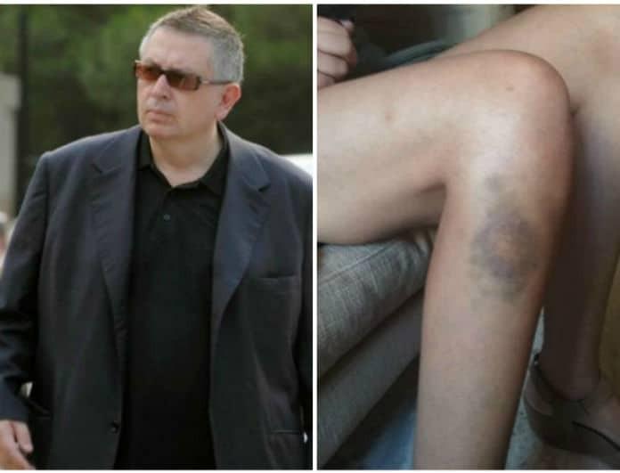 Θέμος Αναστασιάδης: Θύμα άγριου ξυλοδαρμού πρώην κορίτσι του! Στη φόρα φωτογραφίες!