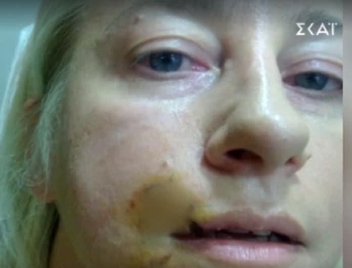 Σοκάρει γνωστή αστρολόγος: Η επίθεση που δέχθηκε από σκύλο και της σημάδεψε το πρόσωπο! (Βίντεο)