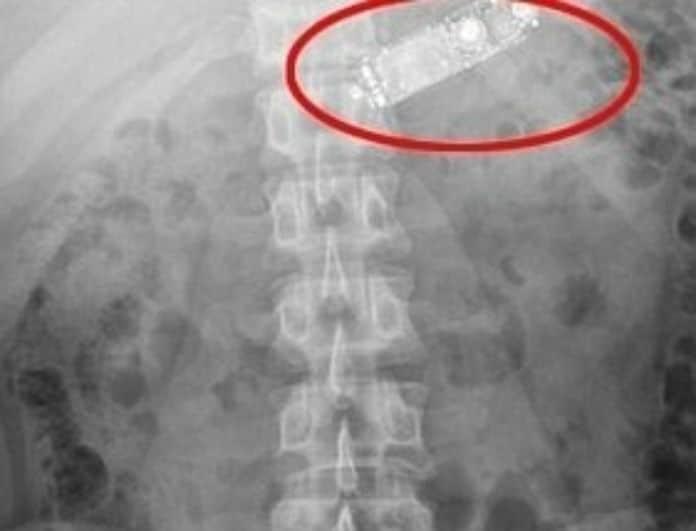 Έκανε εμετό για ώρες μέχρι που πήγε στον γιατρό! H εικόνα θα σας «κόψει» τα πόδια!