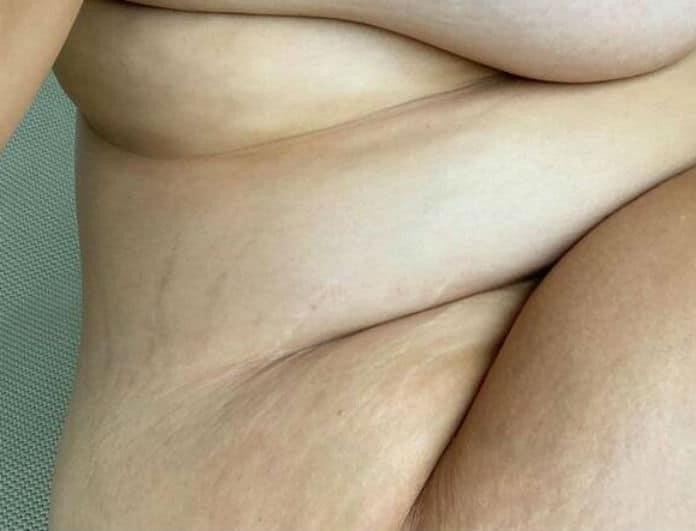Γνωστό μοντέλο μας δείχνει το σώμα της κατά την διάρκεια της εγκυμοσύνης!