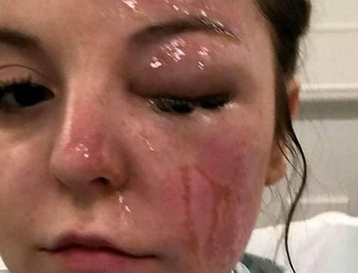 Ανατριχιαστικό! Κινδυνεύει να χάσει το μάτι της επειδή έβαλε στον φούρνο μικροκυμάτων αυτό...