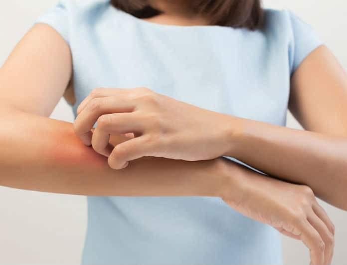 Αν έχεις φαγούρα και το δέρμα των χεριών σου είναι κόκκινο τότε έχεις αυτήν την πάθηση!