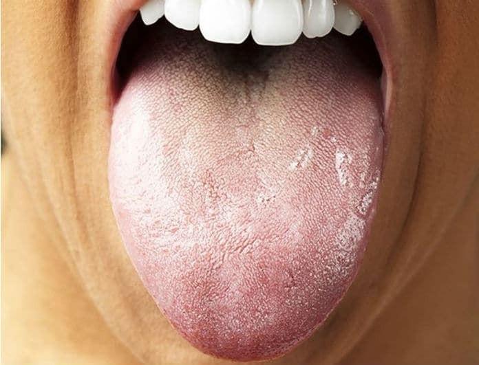 Μεγάλη προσοχή! Έτσι είναι η γλώσσα σας, αν έχετε καρκίνο!