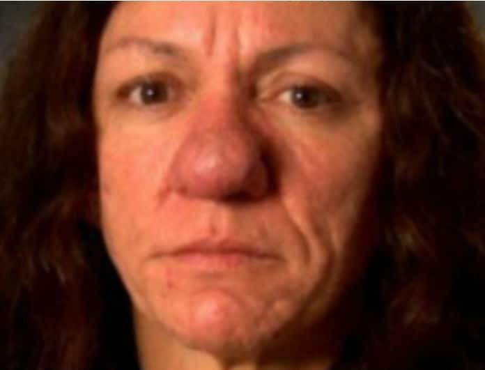 «Έχεις μύτη μελιτζάνα», της έλεγαν όλοι και την κορόιδευαν! Μετά την εγχείρηση έγινε άλλος άνθρωπος! (Βίντεο)