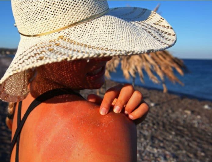 Σε έκαψε ο ήλιος; 5 φυσικοί τρόποι να ανακουφίσεις την επιδερμίδα σου!