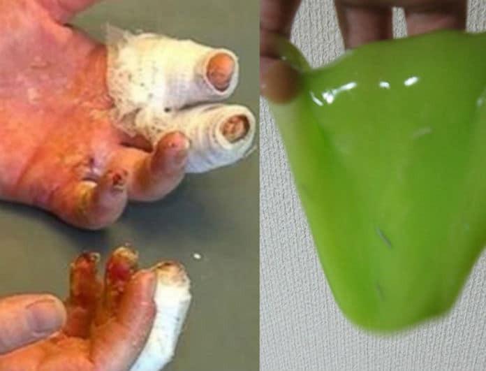 Μεγάλη προσοχή! Γονείς έφτιαξαν χλαπάτσα που είδαν στο ίντερνετ και έπαθαν σοβαρά εγκαύματα στα χέρια!