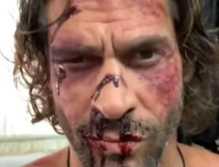 Γιάννης Σπαλιάρας: Σοκ! Στην δημοσιότητα το πρόσωπο του με σπασμένη μύτη και γεμάτος αίματα!