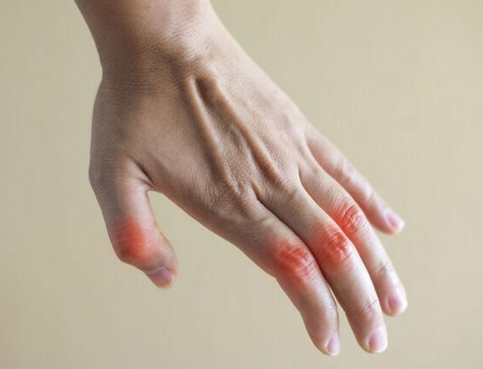 Πονάνε οι αρθρώσεις σας; Να ο λόγος και ο βαθμός επικινδυνότητάς του!
