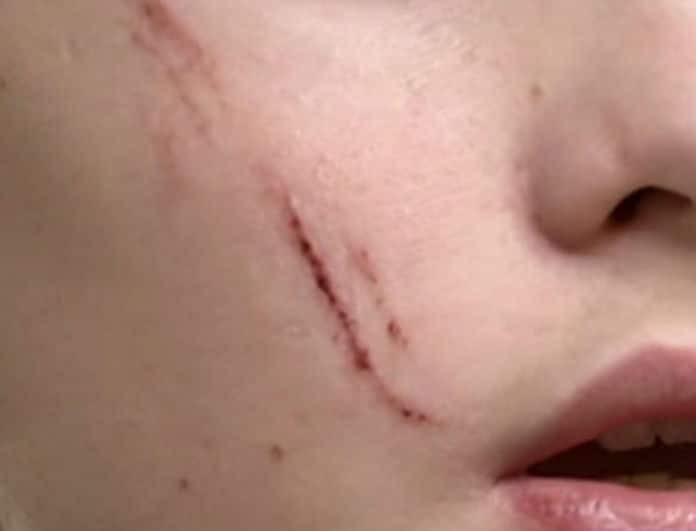Σοκ στην Καλλιθέα: Ανήλικος «χαράκωσε» με κλειδιά 14χρονο συμμαθητή του!