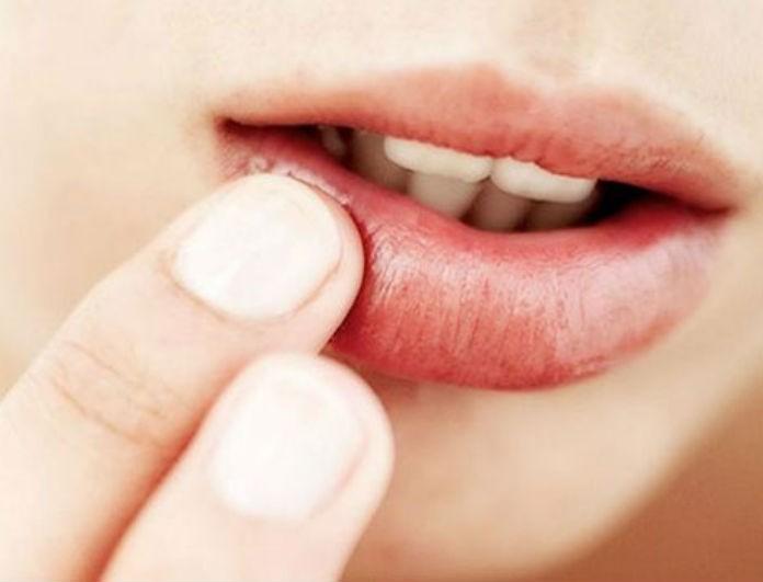 5+1 μυστικά για να μην «σκάνε» τα χείλη σου! Είναι το νούμερο ένα που κοιτάνε όλοι στο πρόσωπό σου...