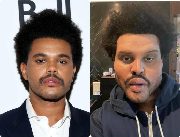 Παραμορφώθηκε από τις πλαστικές ο The Weeknd
