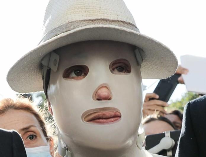 Επίθεση με βιτριόλι: «Βόμβα» για νέο πρόσωπο από τον συνήγορο του 40χρονου
