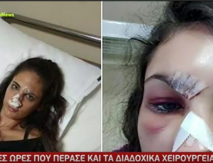 Ναστάζια Μητροπούλου: «Έσπασε η σπονδυλική μου στήλη από κλωτσιές» - Συγκλονίζει για τον ξυλοδαρμό της