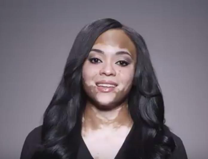Aυτή η Beauty Expert σου δείχνει πως να νιώσεις καλύτερα με τον εαυτό σου ότι πρόβλημα κι αν έχεις