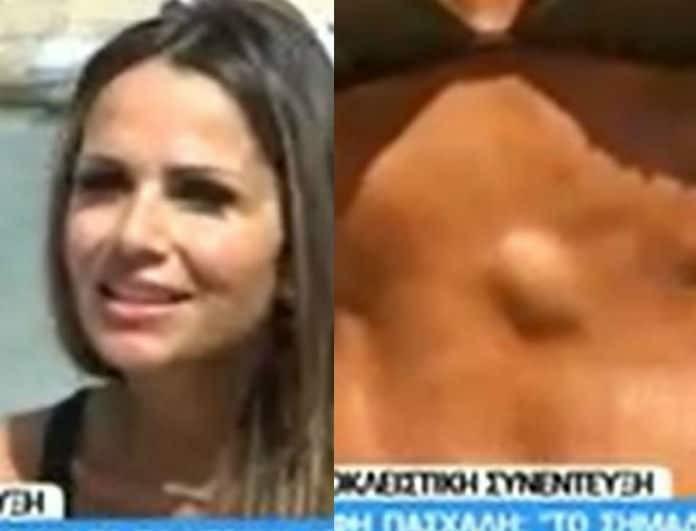 Σόφη Πασχάλη: Αποκαλύπτει πρώτη φορά την ηλικία της και μιλά για το σημάδι στην κοιλιά της! (Βίντεο)