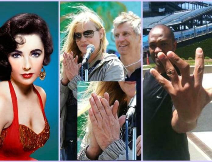 20 διάσημοι με «κουσούρια» - Ποιοι έχουν 12 δάχτυλα και 4 βλεφαρίδες!
