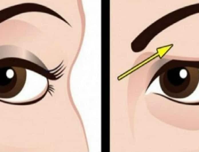 Πως να αντιμετωπίσετε με φυσικό τρόπο τα πεσμένα βλέφαρα! Τα αποτελέσματα είναι εκπληκτικά!