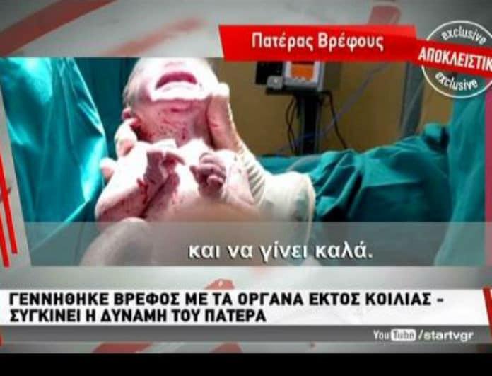 Δύναμη ψυχής από γονείς! Κράτησαν το μωρό τους αν και γεννήθηκε με τα όργανα εκτός του σώματος του! (βίντεο)