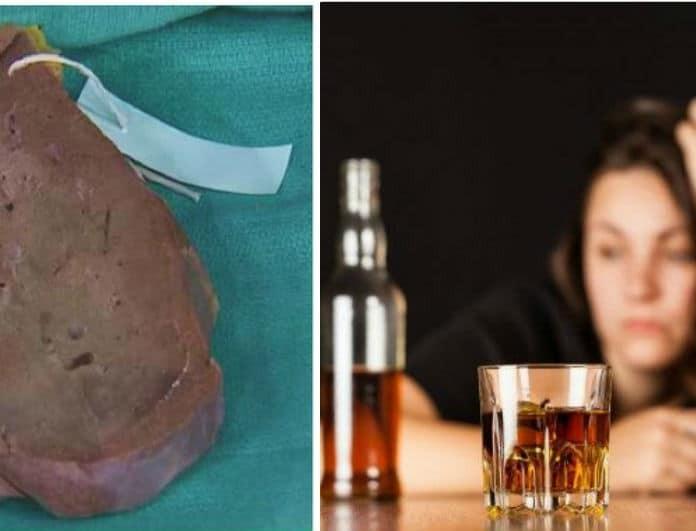 Δεν φαντάζεστε πως είναι το συκώτι ύστερα από χρόνια κατανάλωσης αλκοόλ! (Βίντεο)