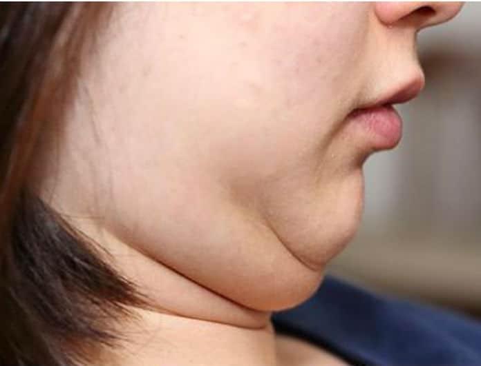 Πες αντίο στο προγούλι και στα μάγουλα! Αυτή είναι η δίαιτα που θα εξαφανίσει το περιττό λίπος!