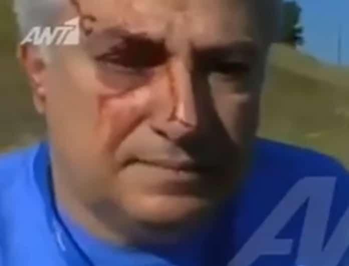 Γρεβενά: Με αίματα στο πρόσωπο ο πιλότος του αεροπλάνου! Οι σοκαριστικές του δηλώσεις! (Βίντεο)