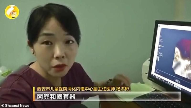 8χρονη πήγε για εγχείρηση και πάγωσαν οι γιατροί! Τι έβγαλαν από το στομάχι της;