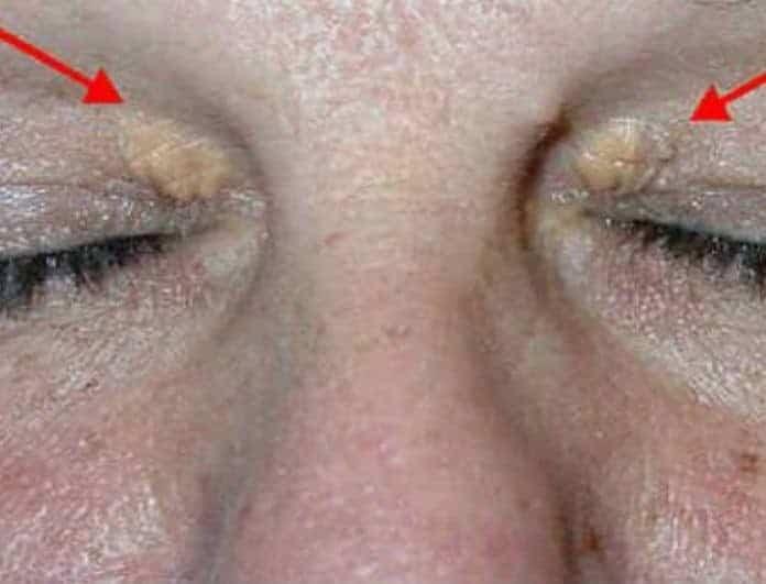 Συναγερμός για την υγεία σας! Τι κίνδυνο αποκαλύπτουν αυτά τα σημάδια στα μάτια!