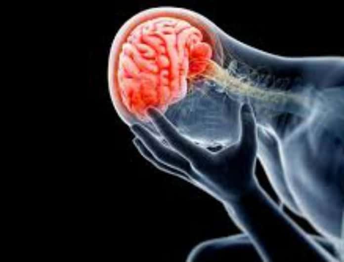 Προσοχή! Αυτές είναι οι ερωτήσεις που σώζουν ζωές αν πάθεις εγκεφαλικό επεισόδιο!