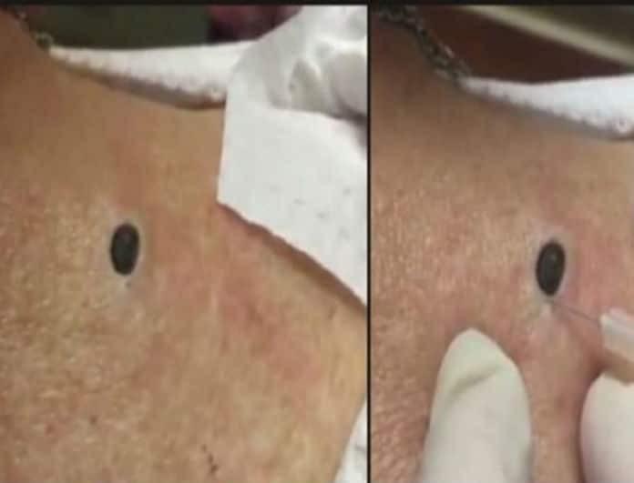 Όλη της τη ζωή είχε αυτό το μαυράκι στην πλάτη! Το βίντεο της αφαίρεσής του θα σας «κόψει» τα πόδια!