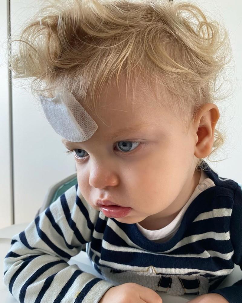 κεφάλι χτύπημα Chiara Ferragni γιος