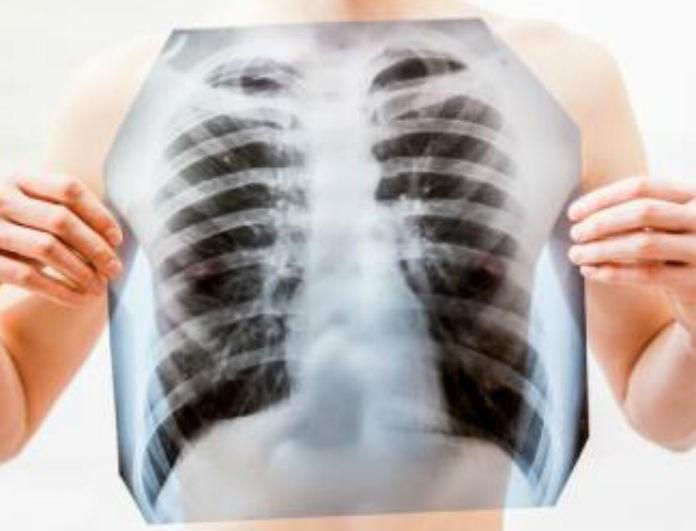 ΧΑΠ: Η επικίνδυνη ασθένεια που μπορεί να σε