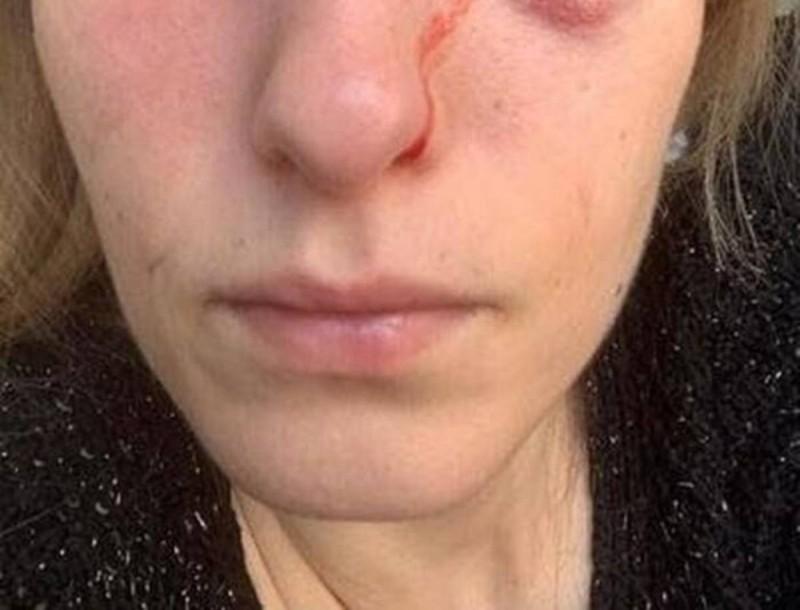 Σοκ! Παραμορφώθηκε το πρόσωπο μοντέλου μετά από άγρια επίθεση του σκύλου της