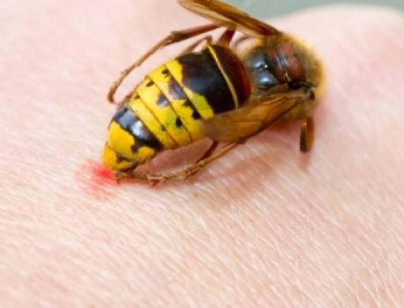 Σας τσίμπησε μέλισσα ή σφήκα; Ρίξτε στο σημείο μαγειρική σόδα για να το αντιμετωπίσετε