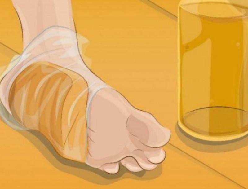 Κάλοι και φουσκάλες στο πόδι; Εξαφανίστε τα τυλίγοντας ψωμί και...