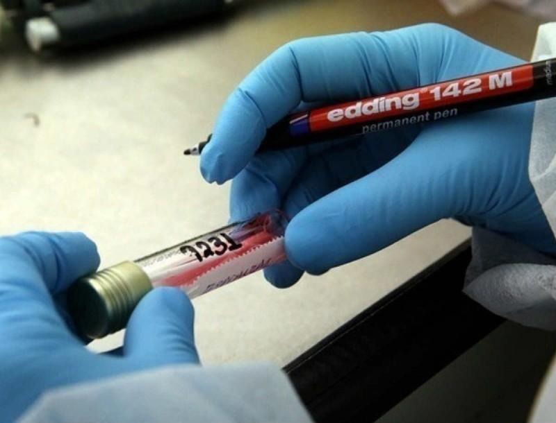 Κορωνοϊός: Μειωμένος κίνδυνος για αυτή την ομάδα αίματος
