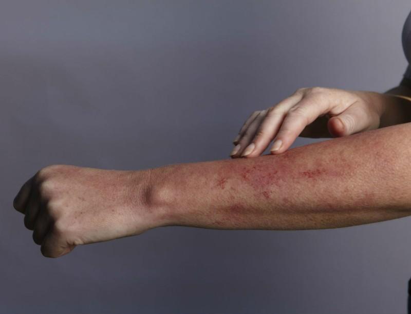 Λύκος: Τα σημάδια της ασθένειας που δεν πρέπει να αγνοήσετε